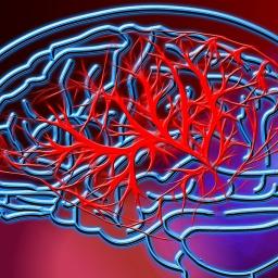 Alzheimer's disease vs vascular dementia
