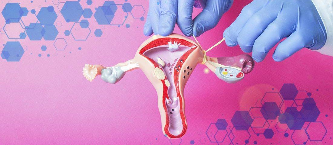 DEMESA   Infertilidad Femenina Trompas de falopio obstruidas