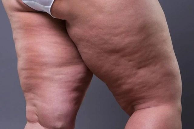 Come sbarazzarsi della cellulite