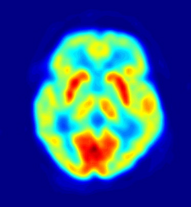 PET Image of the human brain showing energy consumption