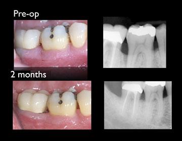 牙周病治療中心