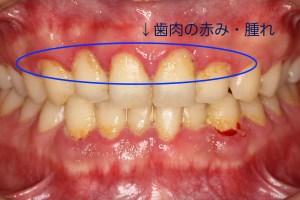 歯肉の腫れです