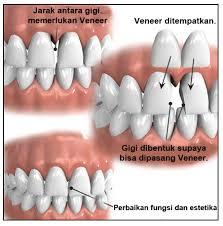 Dental Id Sahabat Dokter Gigi