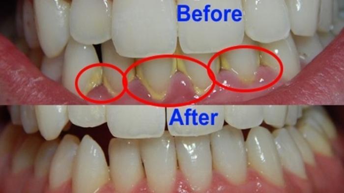 Yang Perlu Diketahui Tentang Karang Gigi dan Akibat Jika Tidak Dibersihkan