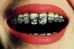 Penelitian Ini Menjelaskan Rokok Sebabkan Gigi Berlubang Atau Karies Parah
