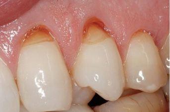 Menipisnya Gigi Dan Gusi Karena Sikat – dental.id 99b32eb1f6