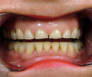Kalau Gigi Keras Kok Bisa Patah Dan Terkikis?