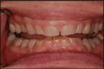 Kebiasaan Mengerat Gigi: Penyebab, Akibat, dan Perawatannya