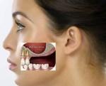 Ternyata Sinusitis Bisa Dipicu Karena Infeksi Gigi