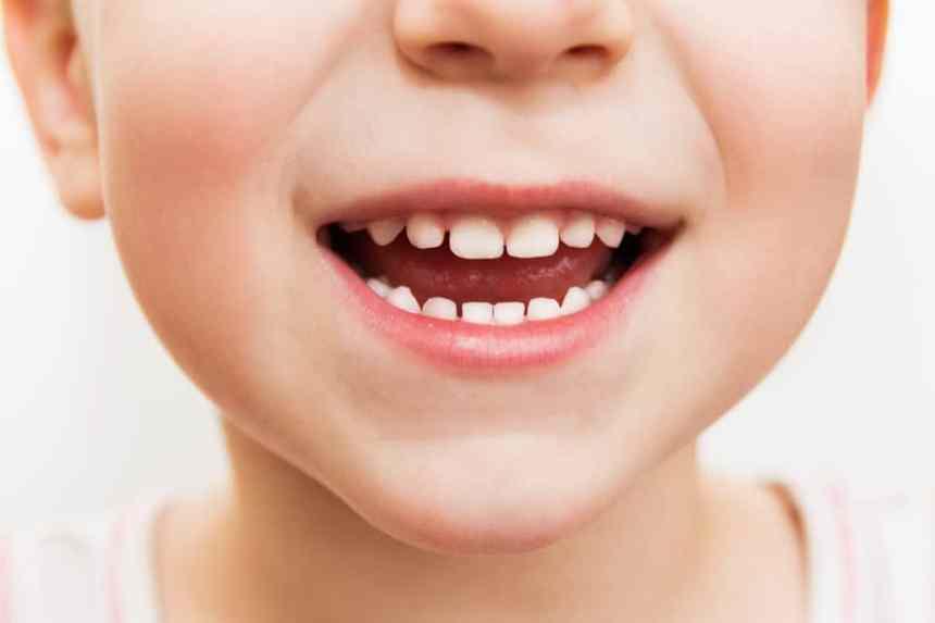 2 Buah Yang Harus Dikonsumsi untuk Memperkuat Gigi Susu Anak