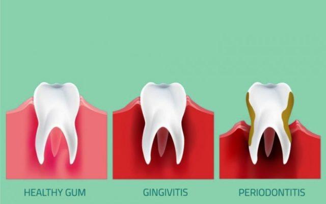 Mengenal Periodontitis : Gejala, Penyebab Dan Pengobatan Periodontitis