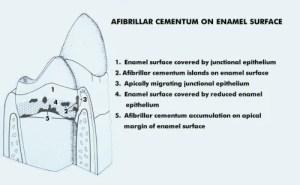 Cementogenesis  Development of Coronal Cementum Diagram 4