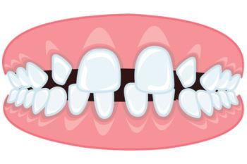 bretele dentare pierd greutatea)
