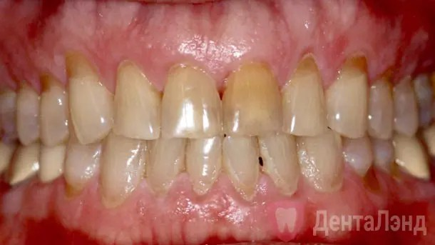 Before-Полная реставрация зубов винирами