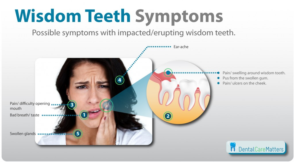 """Graphic showing the common wisdom teeth symptoms"""