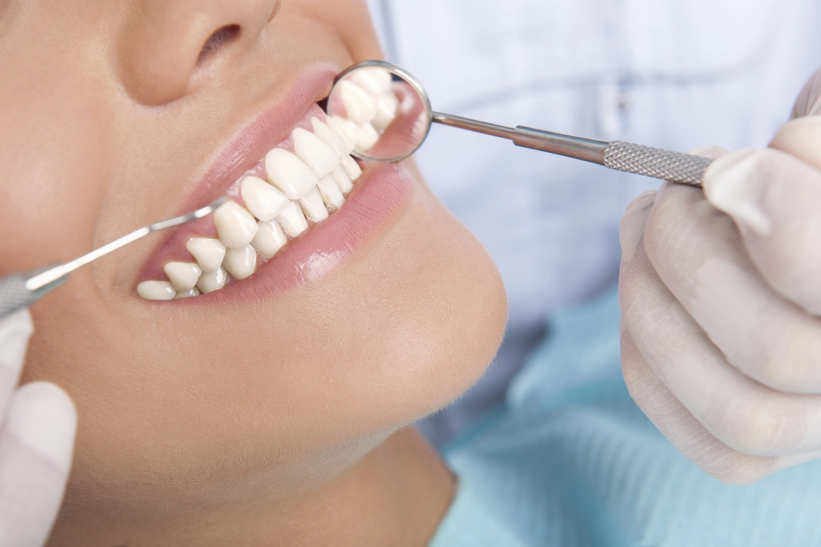 periodontitis en guatemala