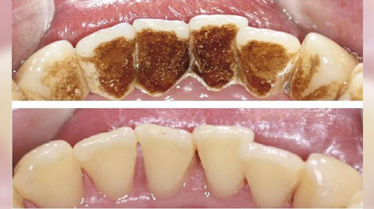 photo of teeth before and after smoking