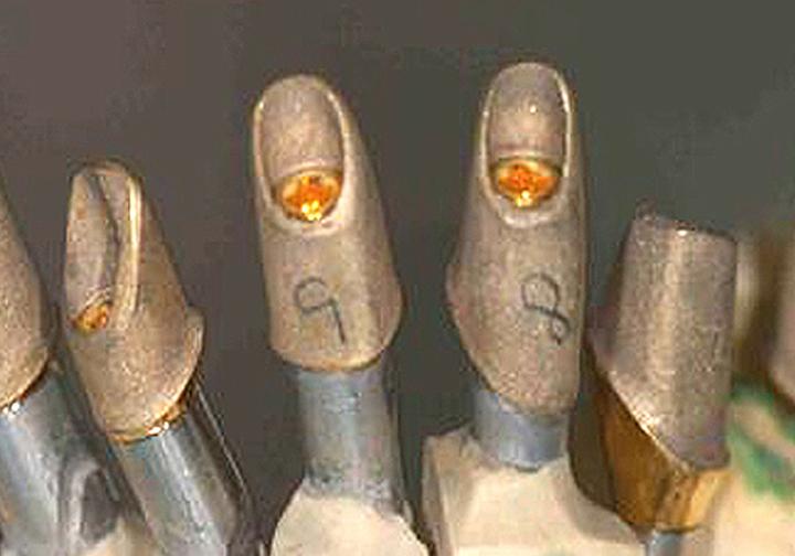 Custom cast gold implant abutments