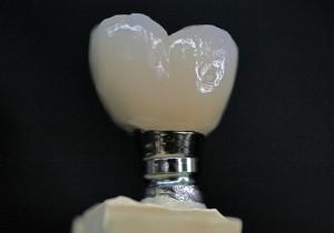 Custom Cast Abutment Crown Buccal.30