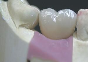 Custom Cast Abutment Crown Buccal Tissue 30