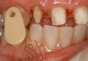 Opacious dentin cervical shade