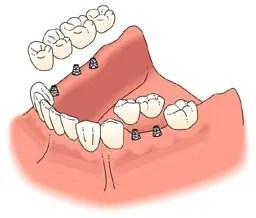 Dental Implant Treatment Solutions