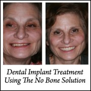 No Bone Solution Dental Implant Treatment