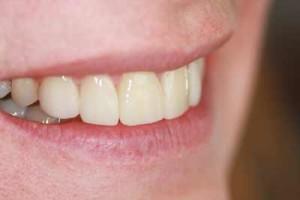 Post-op Photo of Custom Made Veneers Designed Dental Lab