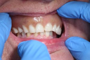 Implants Treatment by Dr Kevin Will Reimburse Your Smile