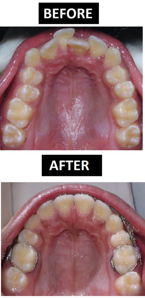 Braces Treatment