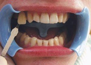 zabieg wybielania zębów przed