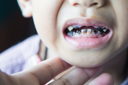What is Bottle Tooth Decay?