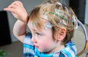 What are the causes, symptoms, and treatments of epilepsy?