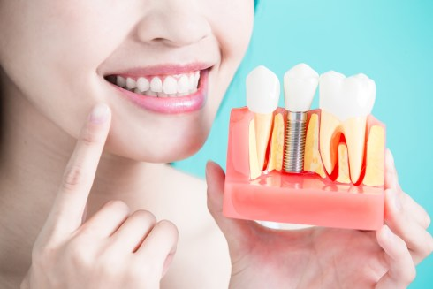 Dental Implants Guide To A Confident And Revived Smile