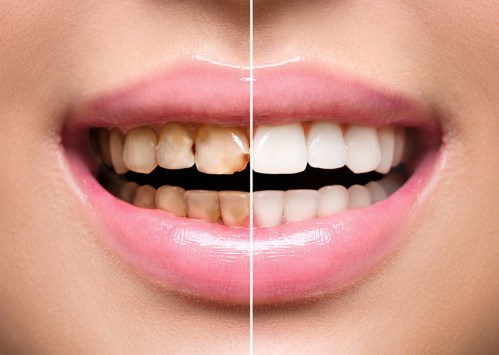 Teeth Whitening Useful Facts And Expert Recommendations