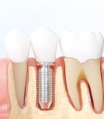 Dental Implants Procedure Advantages Disadvantages And Risks
