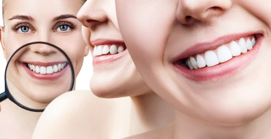 Introduction to Teeth Whitening: Things You Need To Know