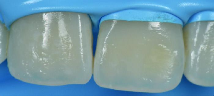 caso clinico de producto icon  Alternativa Microinvasiva, Tratamiento estético para Manchas Blancas 4 08