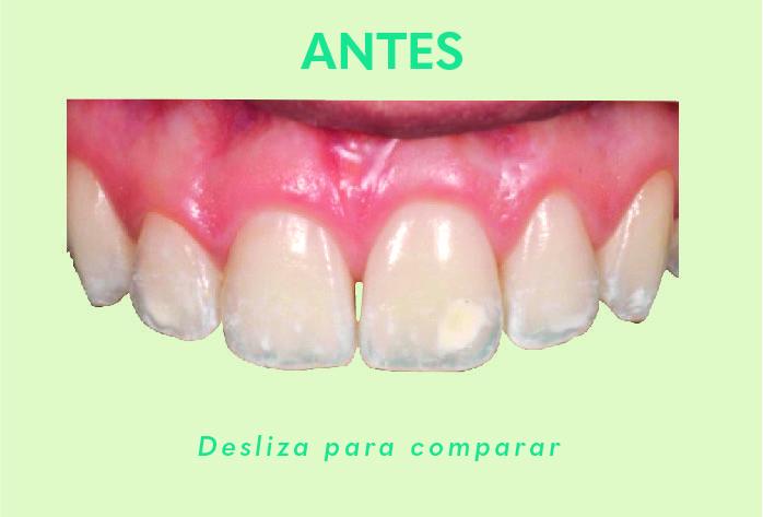 Comparacion de antes y despues de usar el producto icon  Alternativa Microinvasiva, Tratamiento estético para Manchas Blancas Antes 07 1