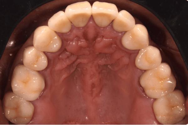 Rehabilitación bucal Paciente  Lesiones Cervicales no Cariosas Captura de pantalla 2018 04 18 a las 13