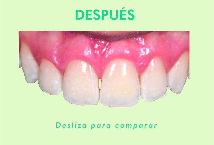 Comparacion de antes y despues de usar el producto icon  Alternativa Microinvasiva, Tratamiento estético para Manchas Blancas Despues 07 1