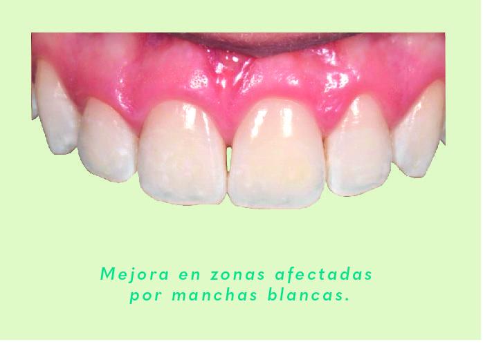 caso clinico de producto icon  Alternativa Microinvasiva, Tratamiento estético para Manchas Blancas SinManchas 09