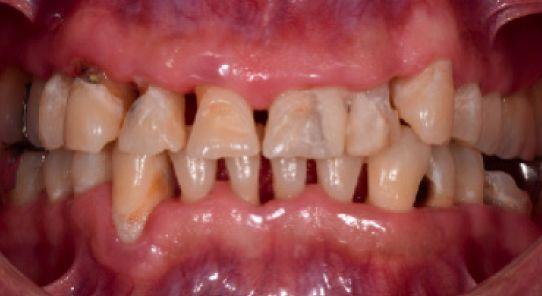 Bienestar biológico, funcional y estético en paciente con lesiones cervicales no cariosas mediante restauraciones cerámicas CasoCli  nico1
