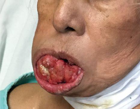 [object object] Carcinoma epidermoide de mucosa alveolar mandibular caso C 1
