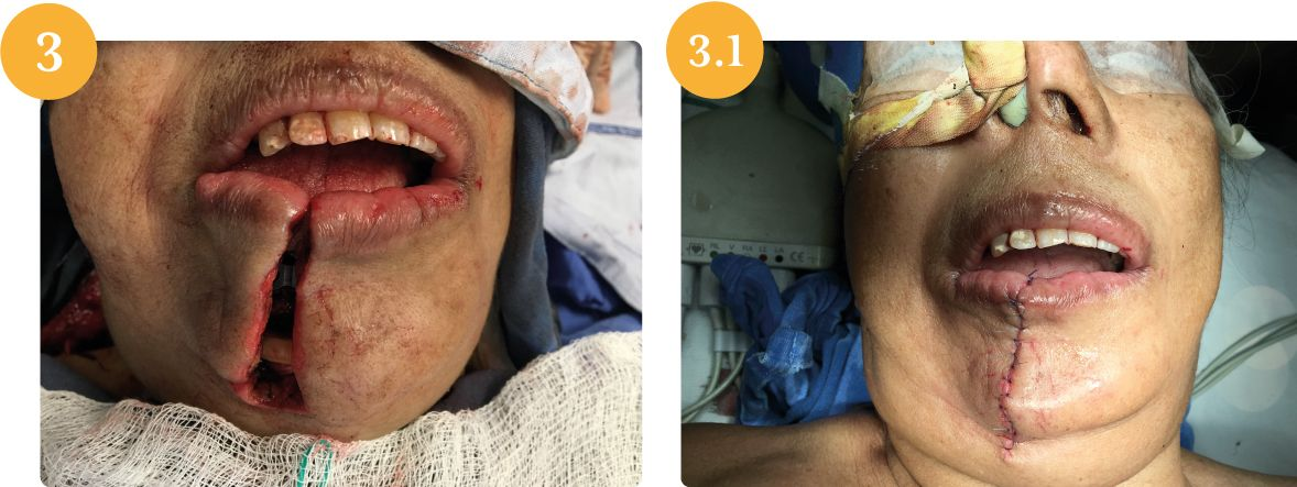[object object] Carcinoma epidermoide de mucosa alveolar mandibular caso C 5