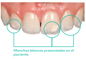 Alternativa microinvasiva, tratamiento estético para manchas blancas. 1 caso cli  nico 2