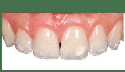 Alternativa microinvasiva, tratamiento estético para manchas blancas. antes