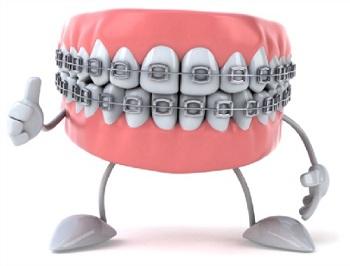 Straight Teeth Equals Healthy Teeth