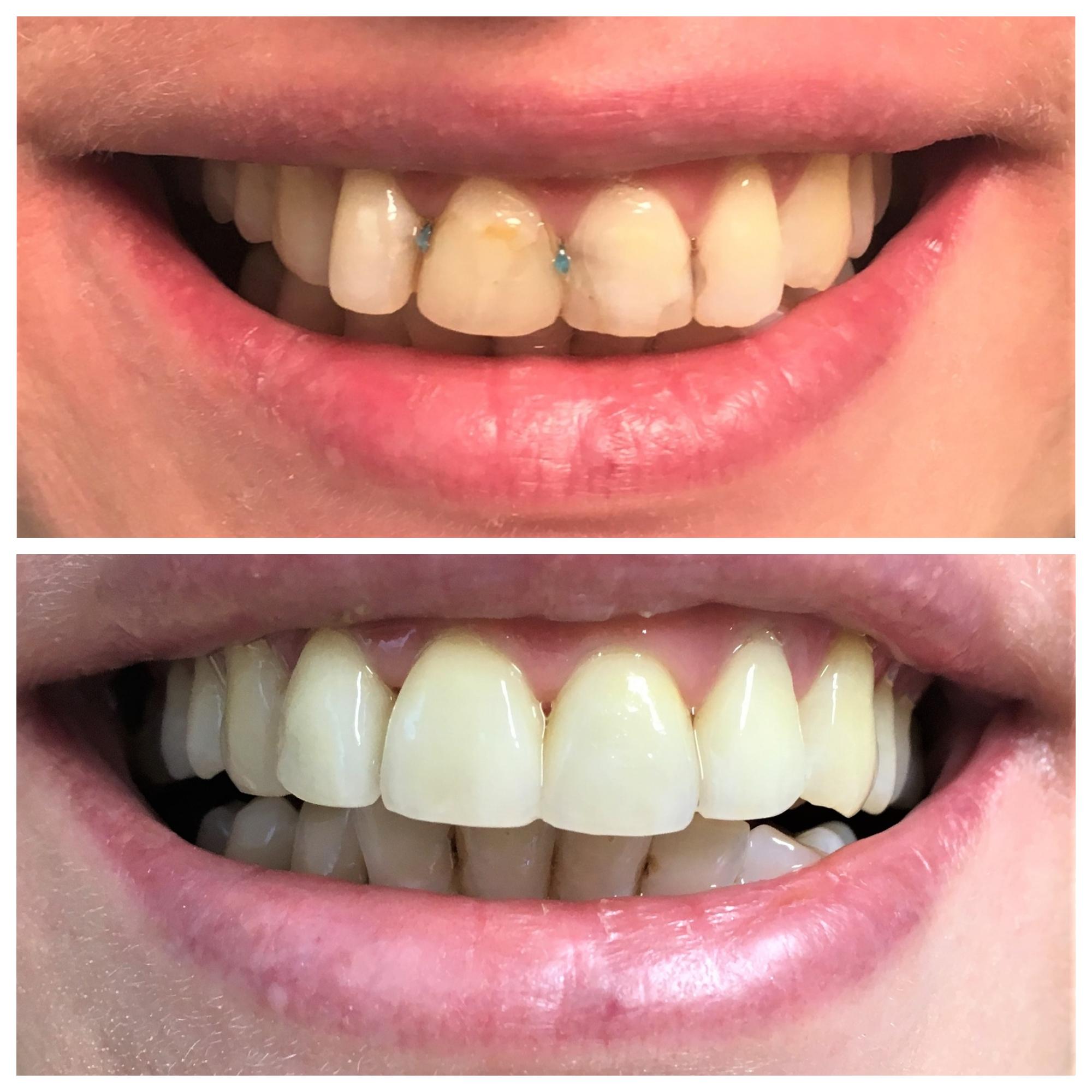 Estetica Dentara Sector 3 Piata Muncii, Dristor, Titan, - Baba Novac