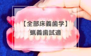 全部床義歯学:蝋義歯試適